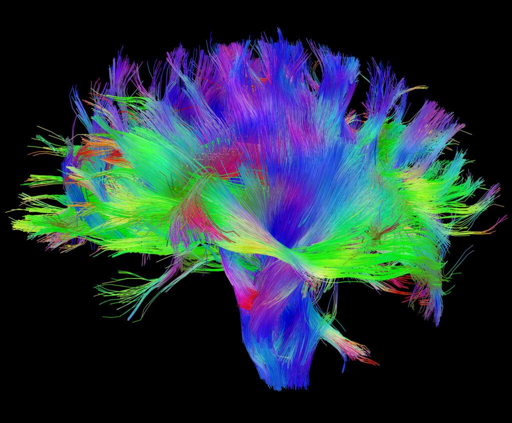 מפה מקיפה של קשרים עצביים בתוך המוח
